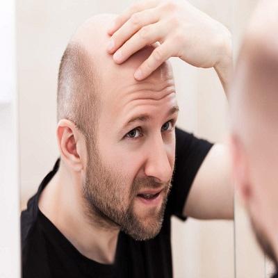 Hair Loss Treatment in Islamabad, Rawalpindi & Pakistan